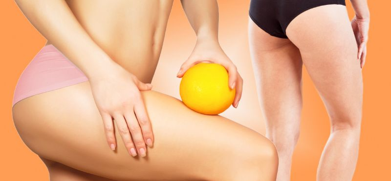 carbossiterapia per cellulite